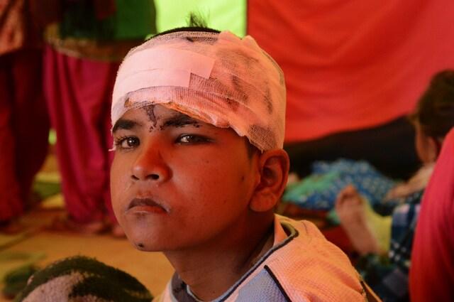 http://www.hindustantimes.com/Images/popup/2015/5/09--injury-Chautara-guri.jpg