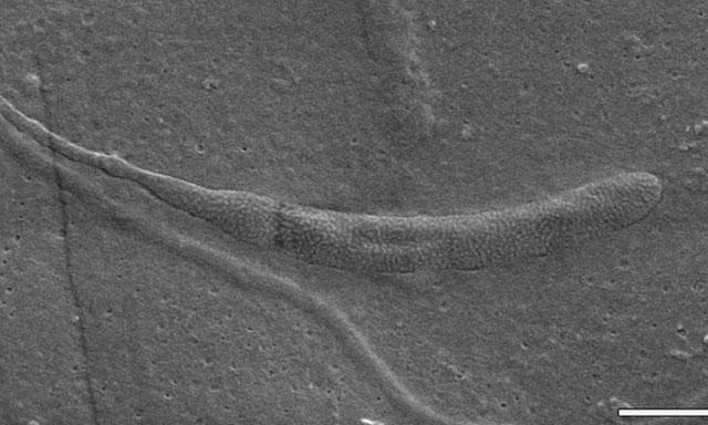 http://www.hindustantimes.com/Images/popup/2015/7/sperm1.jpg